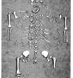 preservation of the dederiyeh infant skeleton  [ 707 x 1221 Pixel ]