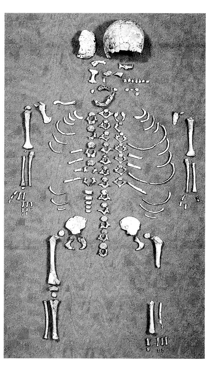 hight resolution of preservation of the dederiyeh infant skeleton