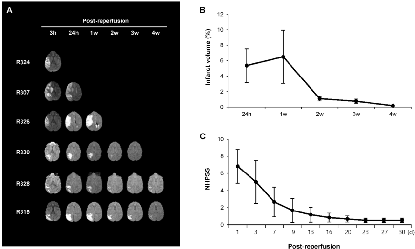 Gradual reduction in the infarct volume is associated with ...