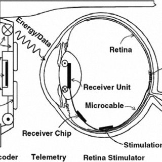 System concept of a visual prosthesis for epiretinal