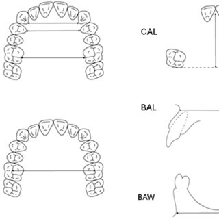 Measurement items for the dental arch dimensions. ICL
