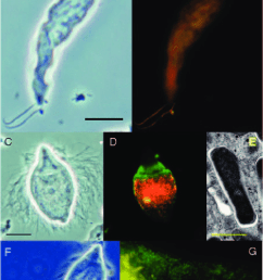 ecto and endosymbionts of flagellated protists in the termite gut a phase contrast [ 680 x 1179 Pixel ]