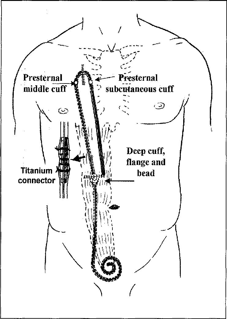 -Swan-neck presternal catheter after implantation
