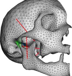 fe model of skull mandible and the tmj [ 850 x 971 Pixel ]