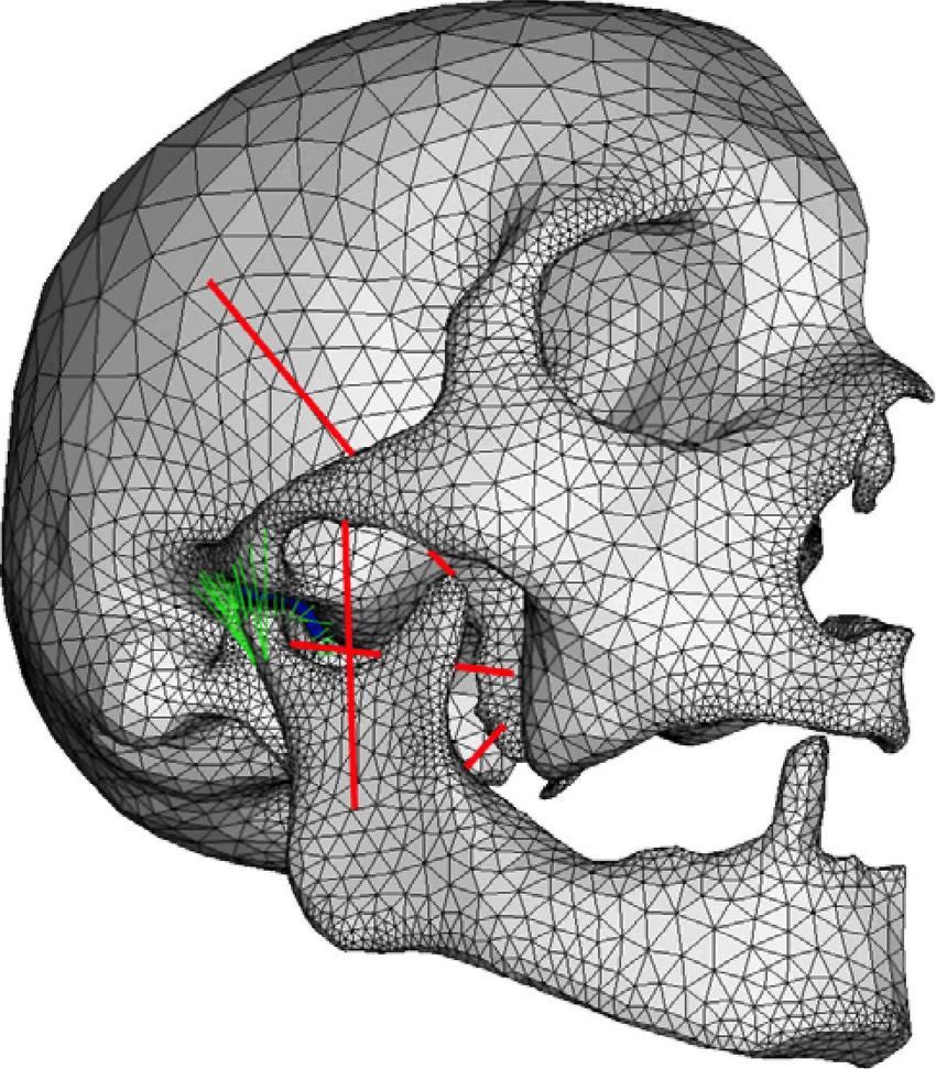 medium resolution of fe model of skull mandible and the tmj