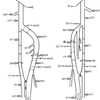 (PDF) Bilateral persistent sciatic vein: Report of a case