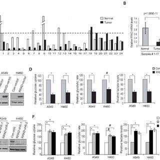 (PDF) Tumor suppressor p53 negatively regulates glycolysis