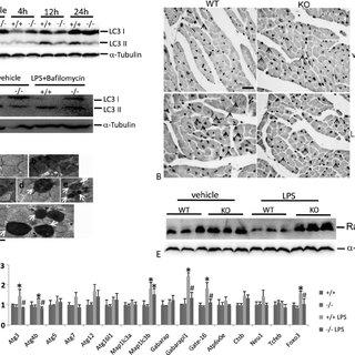 (PDF) Rubicon Deficiency Enhances Cardiac Autophagy and