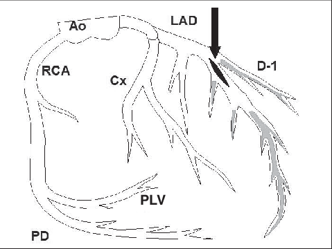 Intraoperative finding of the left coronary artery (LAD