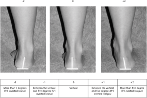 The evaluation of the inversioneversion of the calcaneus