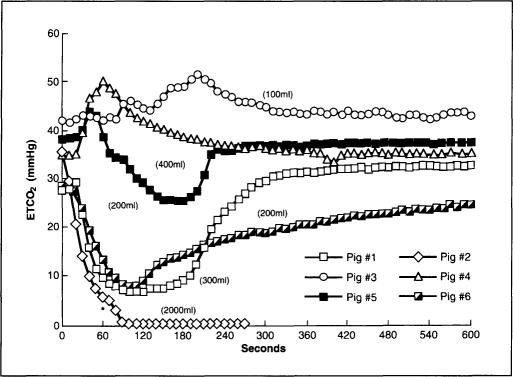 End-tidal carbon dioxide tension (ETCO2) versus time for