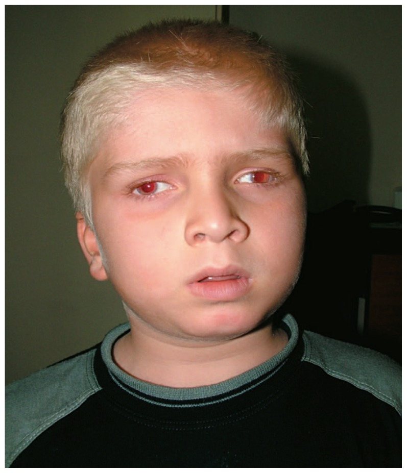 Patient at presentation with oculocutaneous albinism and ...
