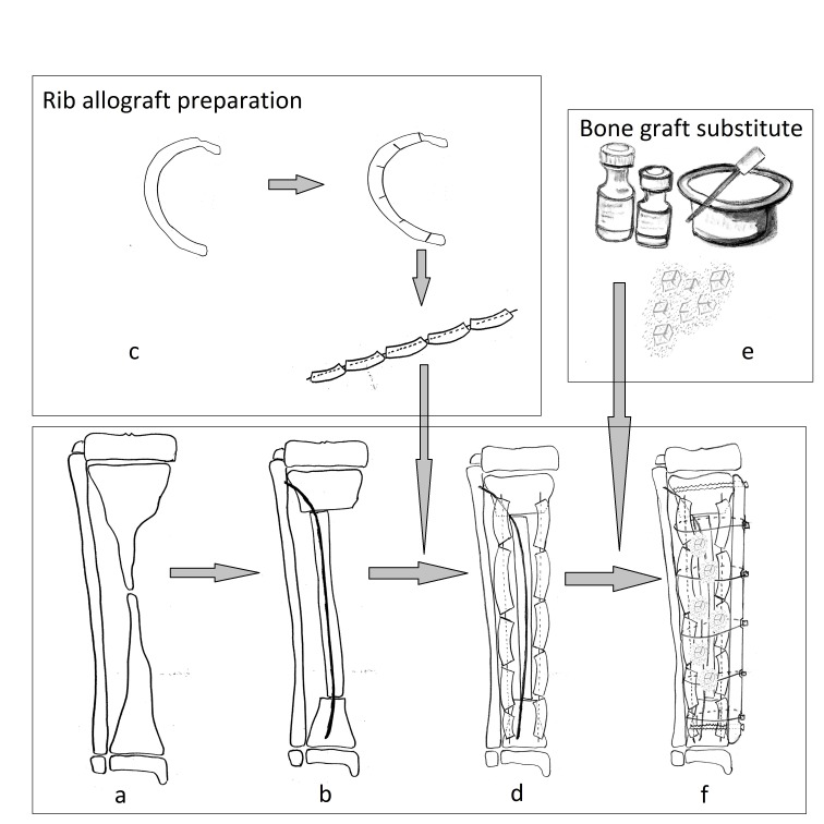 Scheme of the Burnei's procedure. (a) a tibia affected by