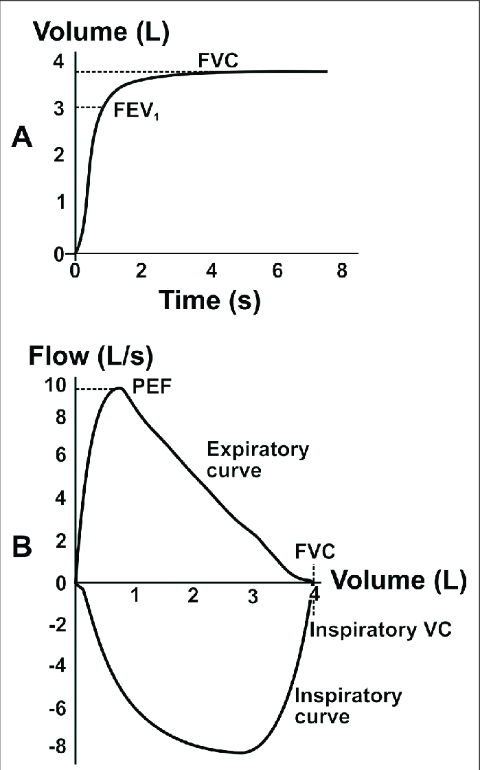 A: volume-time, and B: flow-volume curves. In the flow