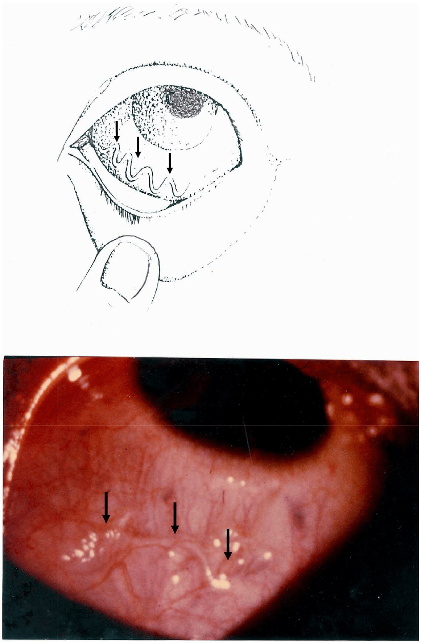 medium resolution of illustration of the passage of an adult worm loa loa across the eye