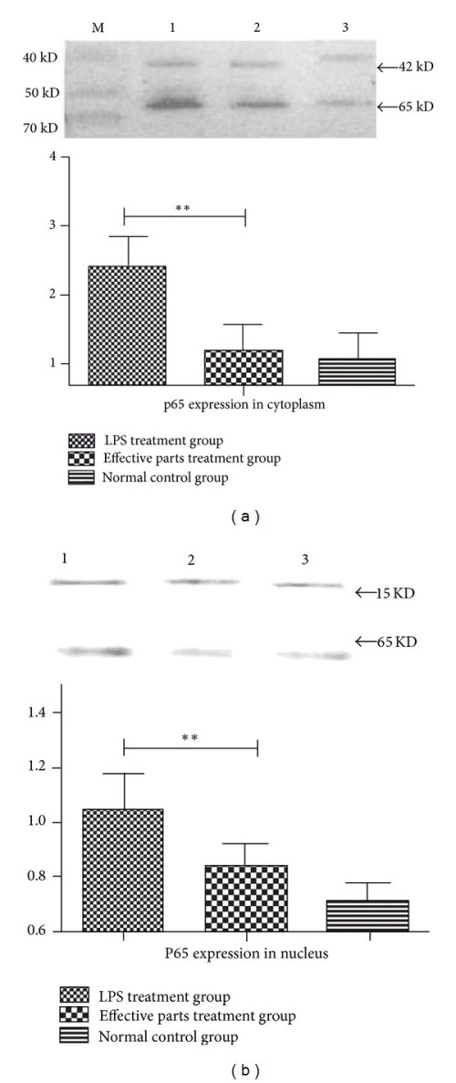 small resolution of effects of anti inflammatory effective parts of housefly larvae on protein expression of nf