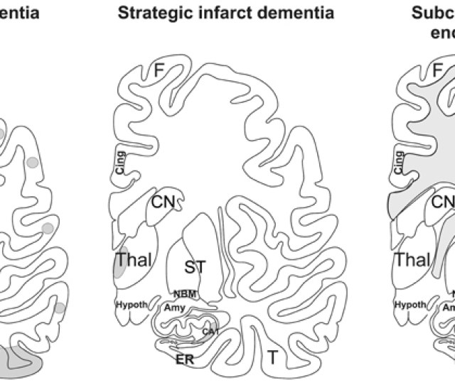 Schematic Representation Of Multi Infarct Dementia Strategic Infarct Dementia And Subcortical Vascular Encephalopathy The Gray Areas Mark The Regions