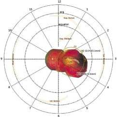 Diagram Of The Left Eye Directv Swm 16 Switch Wiring Retinal Rd A Illustrating 3 4 Mm Apical Height 10 6 Elliptically Shaped Tumor And 2 Margin Surrounding Base