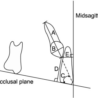 (PDF) Cortical bone strain during the placement of