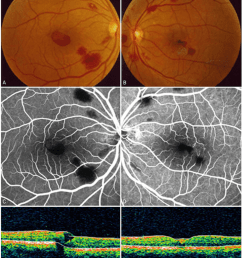 the fundus photograph fluorescein angiograph and optical coherence download scientific diagram [ 850 x 1000 Pixel ]
