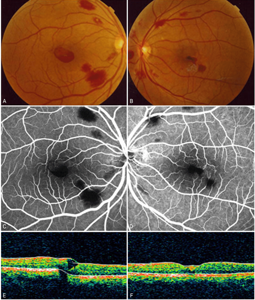 medium resolution of the fundus photograph fluorescein angiograph and optical coherence download scientific diagram