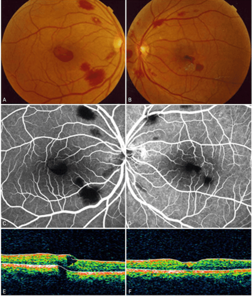 small resolution of the fundus photograph fluorescein angiograph and optical coherence download scientific diagram