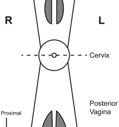 diagrammatic representation of the vaginal tract identifying anatomical locations where tissue specimens were obtained dashed [ 850 x 1517 Pixel ]