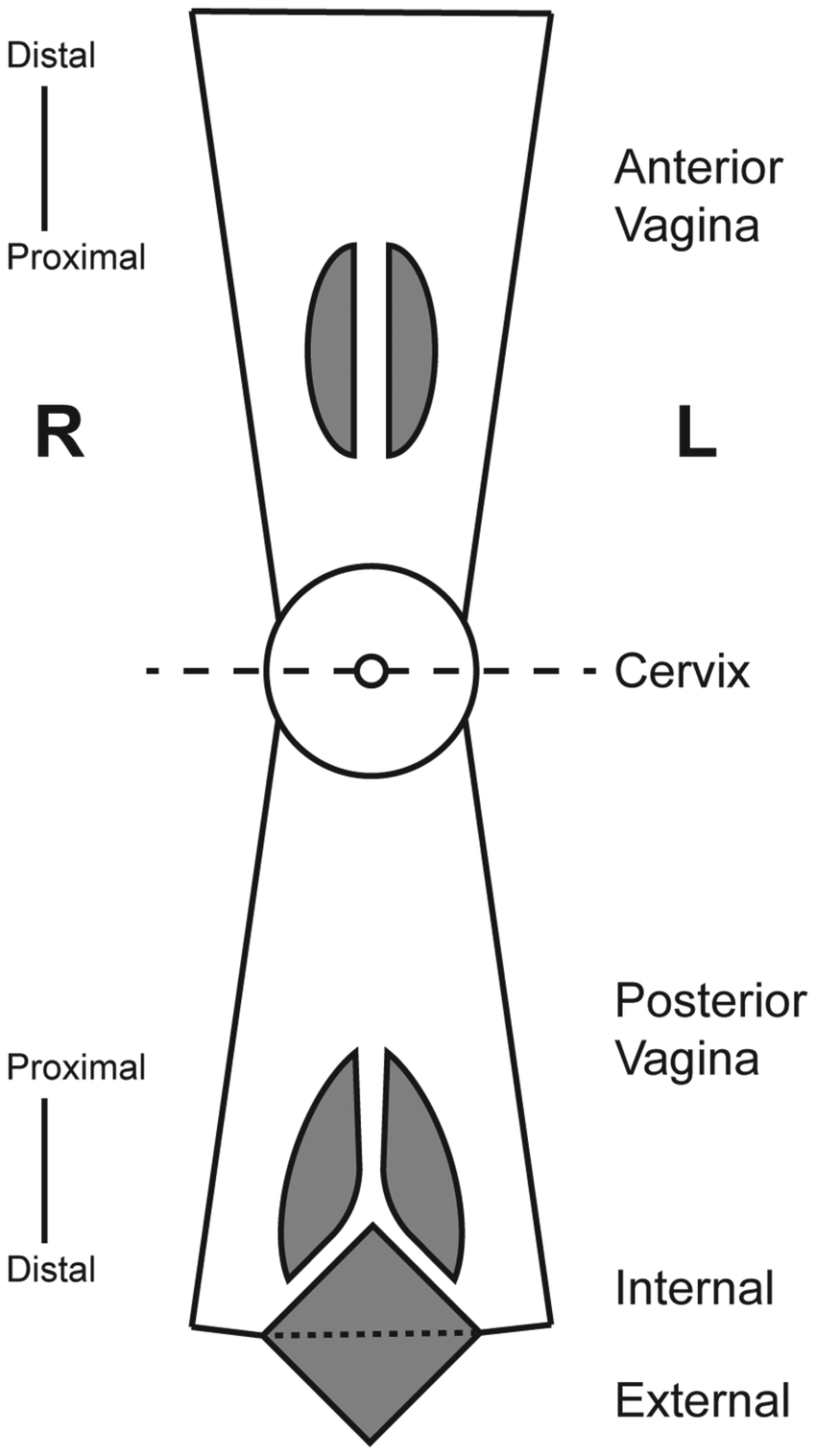 hight resolution of diagrammatic representation of the vaginal tract identifying anatomical locations where tissue specimens were obtained dashed