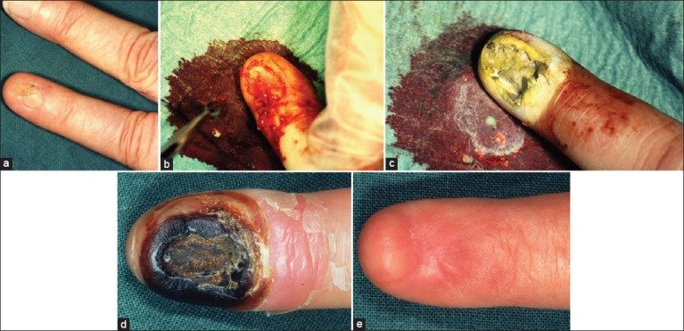 Treatment with curettage-cryosurgery of a subungual ...
