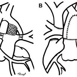 (PDF) Management of the single ventricle and potentially