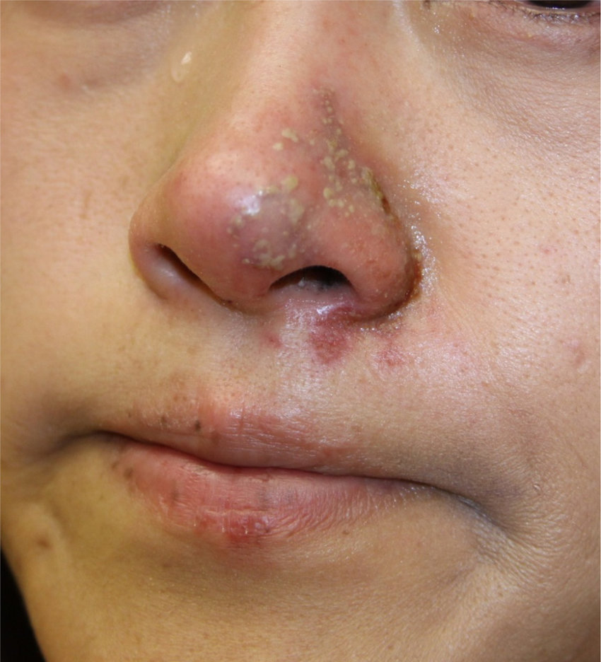 medium resolution of dermal filler injection leading to herpes virus reactivation download scientific diagram