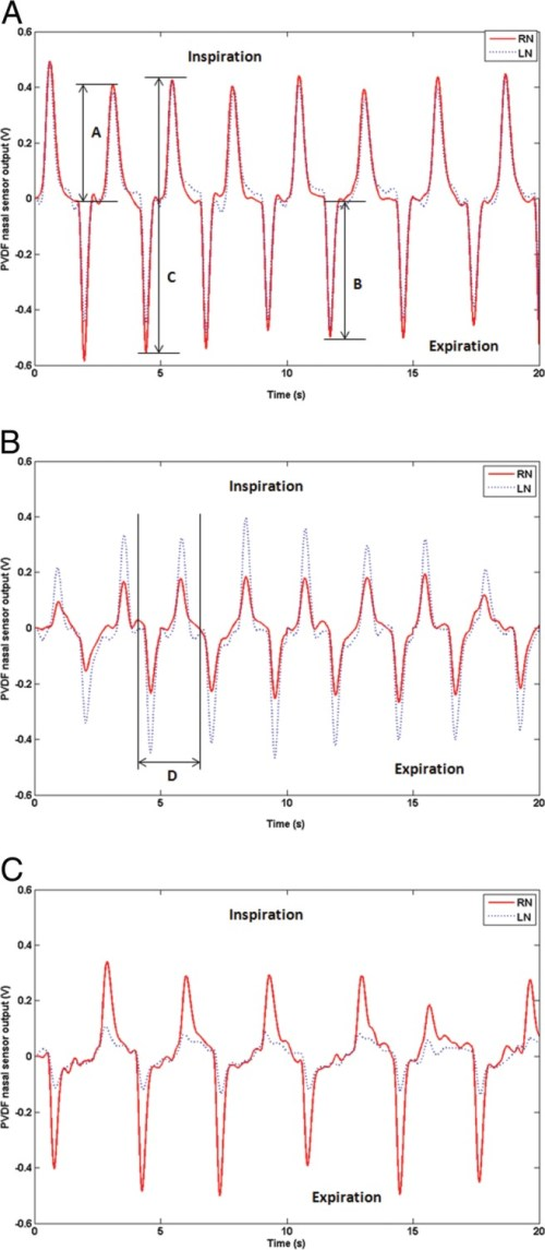 small resolution of breathing cycle traced by polyvinylidene fluoride pvdf nasal sensor in a control