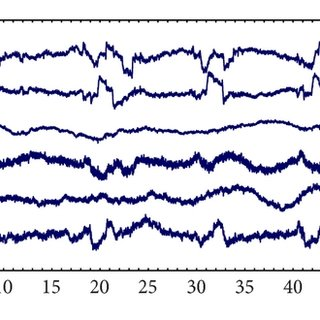 Results of EOG artifact removal on the real EEG data. ( a