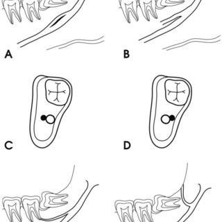 A diagram of configuration of the bifid mandibular canal