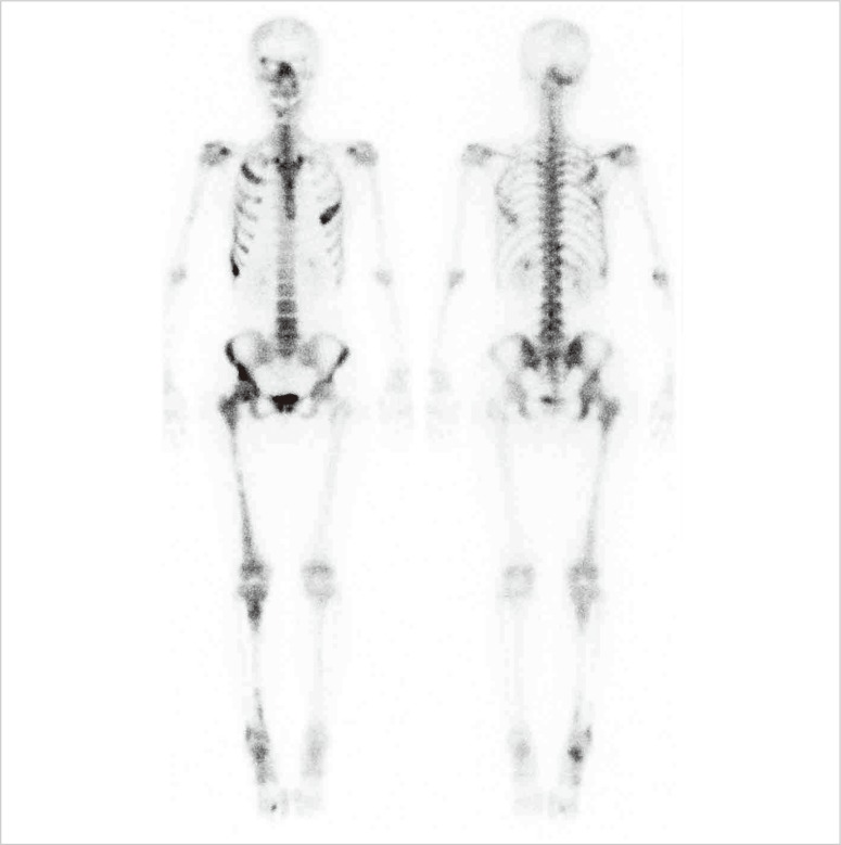 The baseline whole body bone scan. Abnormal increased