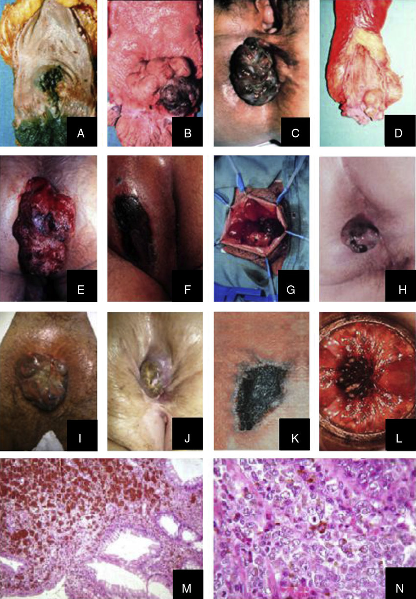 hight resolution of llustrations of the 14 patients with arms four surgical specimens of abdominoperineal resection patients
