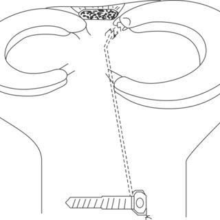 (PDF) Meniscal Repair
