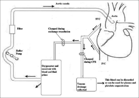 Cardiopulmonary bypass circuit showing arrangements for