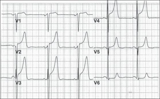 EKG showing Leads V1-V6 in the patient. The EKG was taken