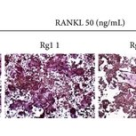 Effects of Rg1 on osteoclast differentiation and