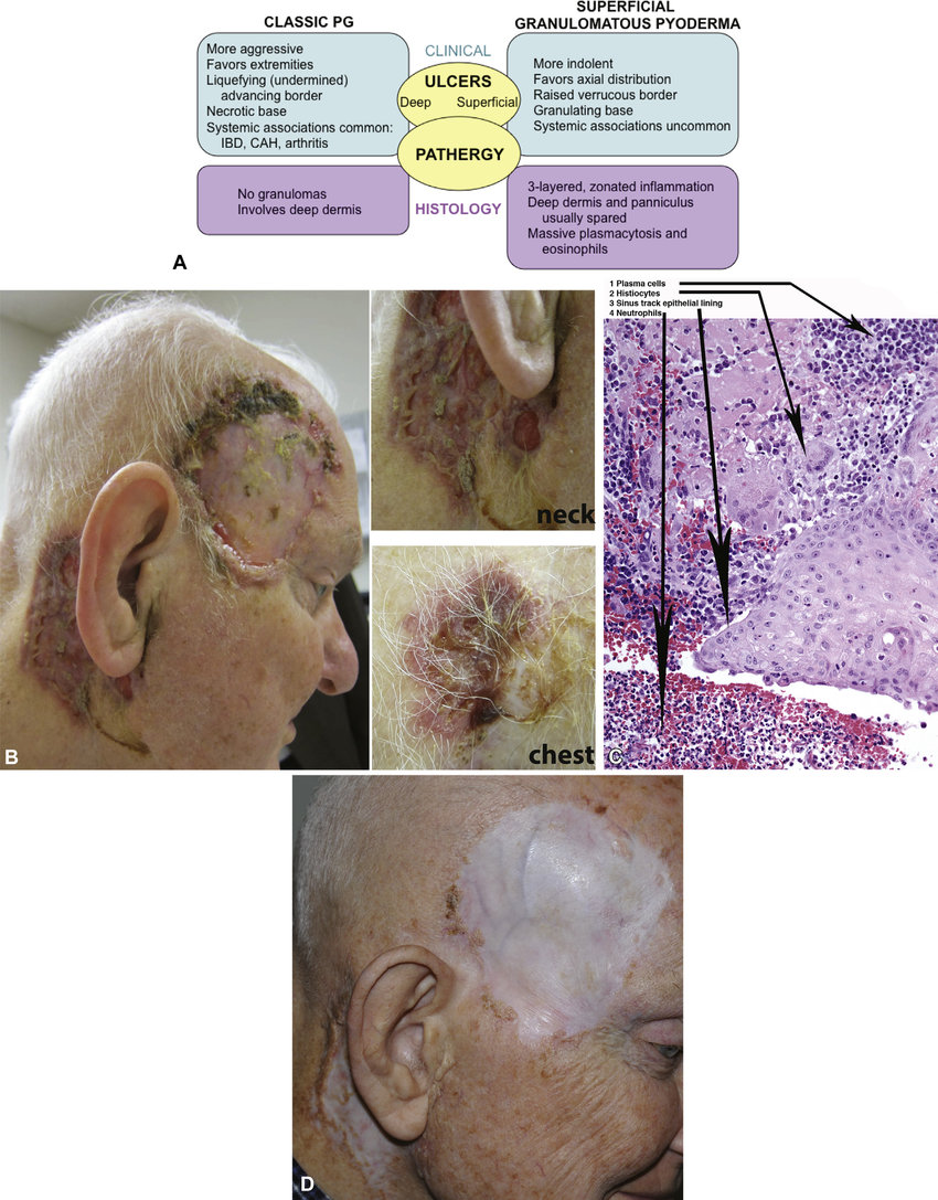 medium resolution of superficial granulomatous pyoderma sgp of the head neck and chest a