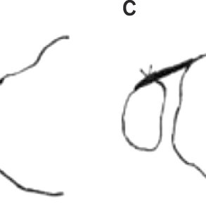 The anterior drawer test. (A) Physical examination. (B