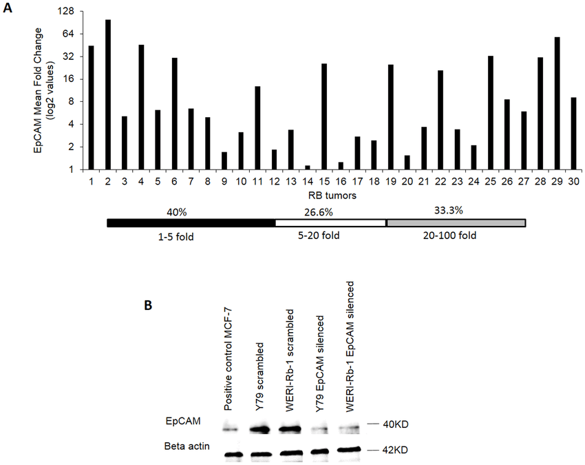 EpCAM is expressed in RB tumors. (A) EpCAM mRNA ranges