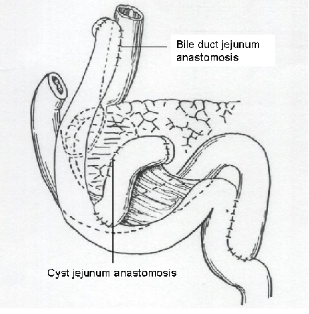 Expansion of the bile duct and cyst with jejunum