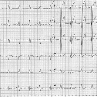 Twelve-lead ECG performed at our hospital. The patient's