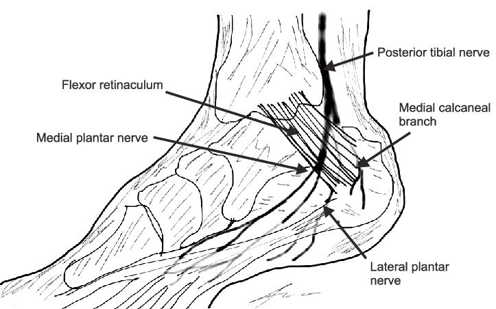 Schematic drawing shows posterior tibial nerve and its