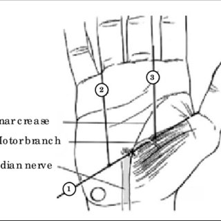 The distal level of the carpal tunnel delimited by the