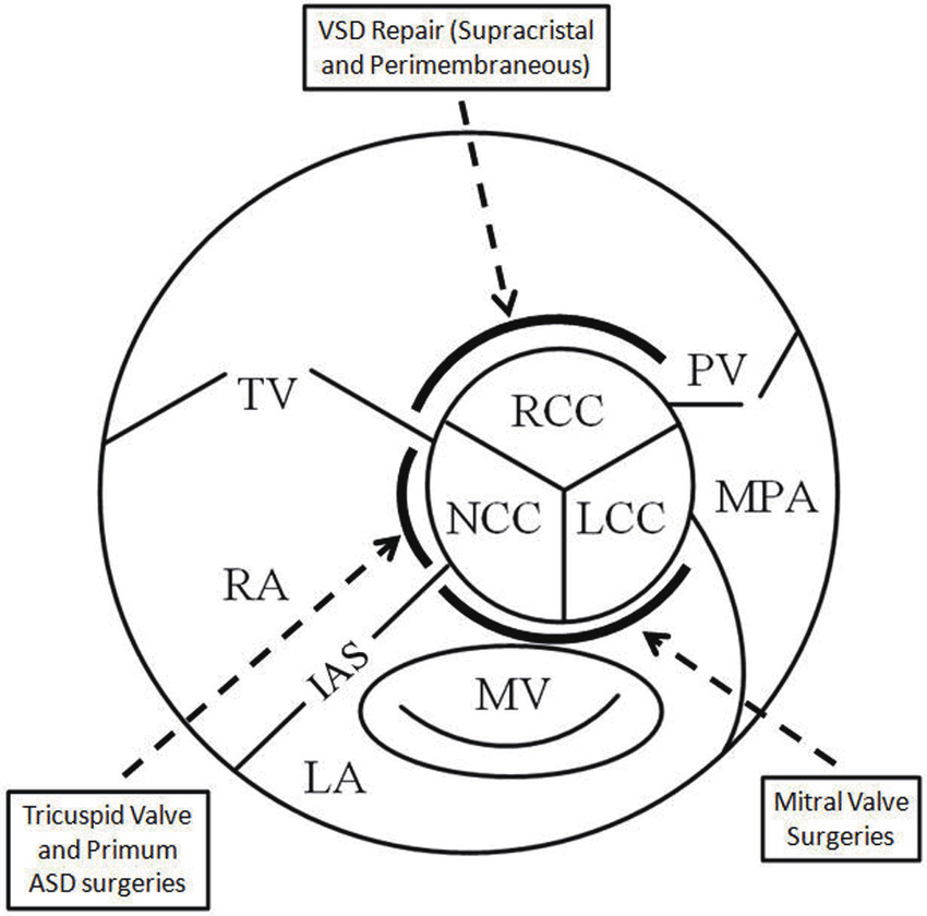 Schematic showing the central location of the aortic valve