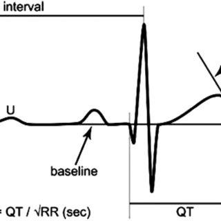 Right bundle branch block: QRS >0.12 s, terminal R wave in
