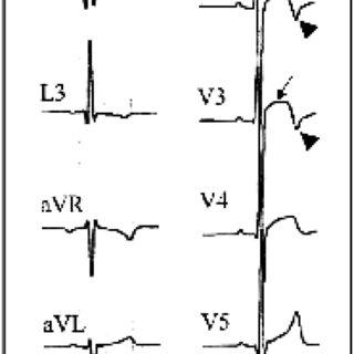 Left bundle branch block: QRS >0.12 s, predominantly